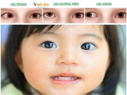 Bài tập đơn giản hỗ trợ điều trị mắt lé (mắt lát) tại nhà